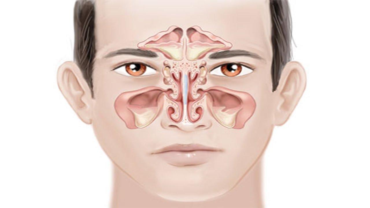 الجيوب الانفيه حساسية اعراض