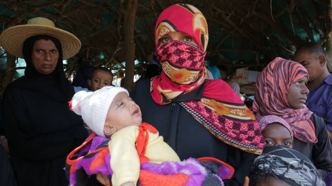 يونيسف تقدم الرعاية لـ561 ألف طفل يمني مصابون بسوء التغذية